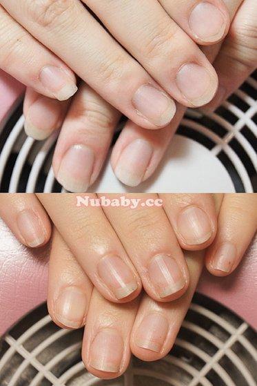 來自日本的小女生-扇形 摳指甲 指甲變形