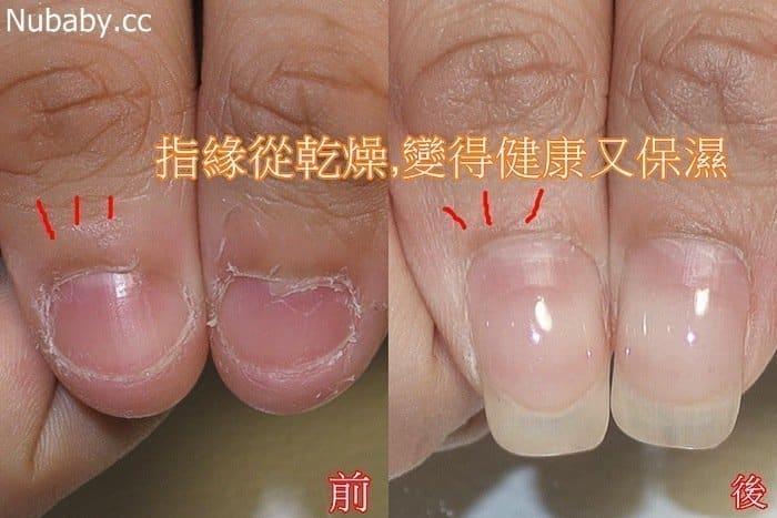 咬指甲 摳皮 甲床外露-國中行政老師小韋