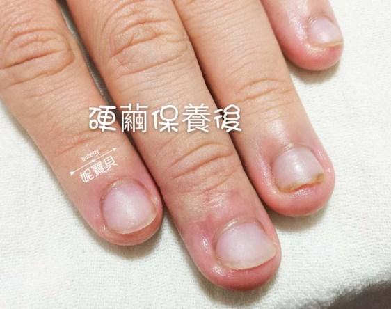 nail20170515 4 - 手部硬繭處理保養--矯正指甲的重點