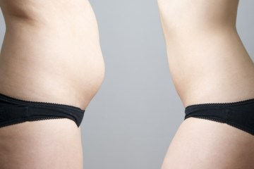 coolsculpting facts before and after