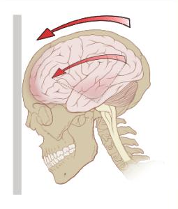 Concussion, Whiplash