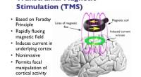 Διακρανιακή μαγνητική διέγερση (TMS)