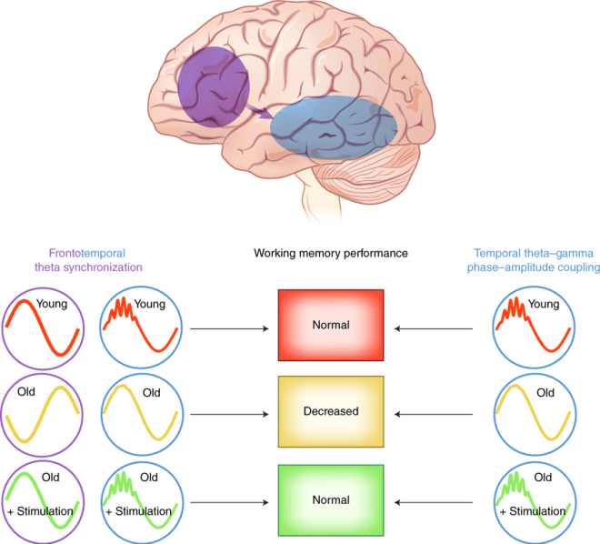 Fig. 1: Causal role of frontotemporal dynamics in working memory. Working memory in the elderly (yellow row) was associated with loss of theta–gamma phase–amplitude coupling in left temporal regions (blue brain region) and frontotemporal theta-phase synchronization (purple brain region and purple arrow) relative to young subjects (red row). HD-tACS reversed the age-related changes in brain dynamics in the elderly (green row).