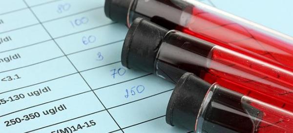 Εξέταση αίματος εντοπίζει τις υποτροπές στον καρκίνο μαστού Θα μπορούσε να βοηθά στον εντοπισμό της υποτροπής του καρκίνου στο μαστό, μέχρι 2 χρόνια νωρίτερα σε σχέση με τις απεικονιστικές εξετάσεις.