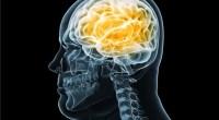 Περισσότερες αποδείξεις για τη σχέση μεταξύ παχυσαρκίας και μικρότερου εγκεφάλου