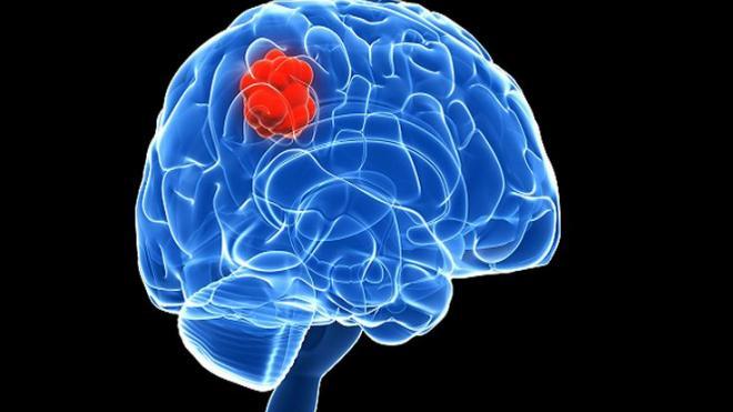 Καρκίνος εγκεφάλου