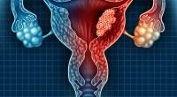 Καρκίνος του ενδομητρίου