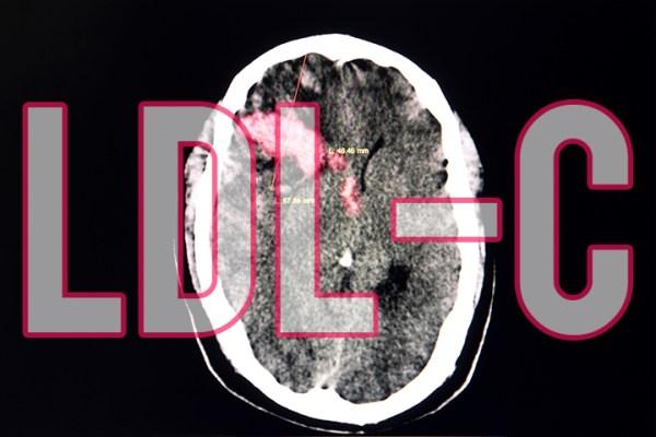 Άνθρωποι με LDL κάτω του 50, είχαν κατά μέσο όρο 169% μεγαλύτερο κίνδυνο αιμορραγικού εγκεφαλικού σε σχέση με όσους είχαν «κακή» χοληστερίνη από 70 έως 99.