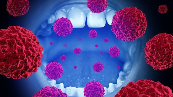 Καρκίνος στόματος