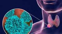 Σχέση μεταξύ της δόσης ραδιενεργού ιωδίου, ως θεραπεία για τον υπερθυρεοειδισμό και του μακροπρόθεσμου κινδύνου θανάτου από καρκίνο, βρήκαν ερευνητές από Αμερικανικό Ινστιτούτο για τον Καρκίνο