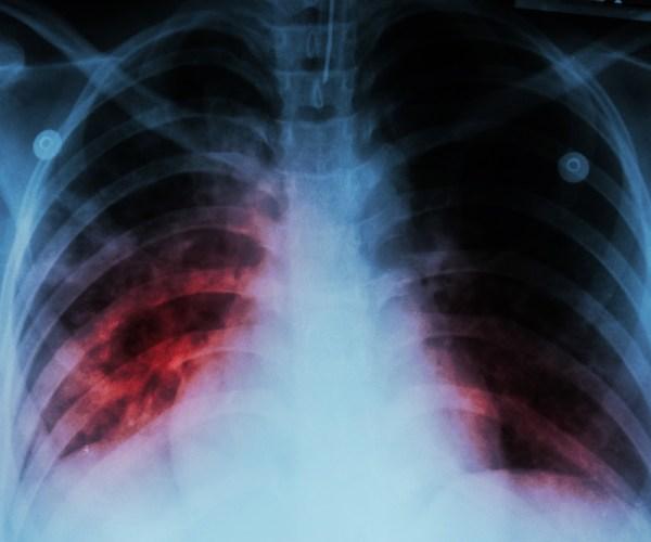 Εκατομμύρια νέα κρούσματα φυματίωσης, λόγω κορωνοϊού