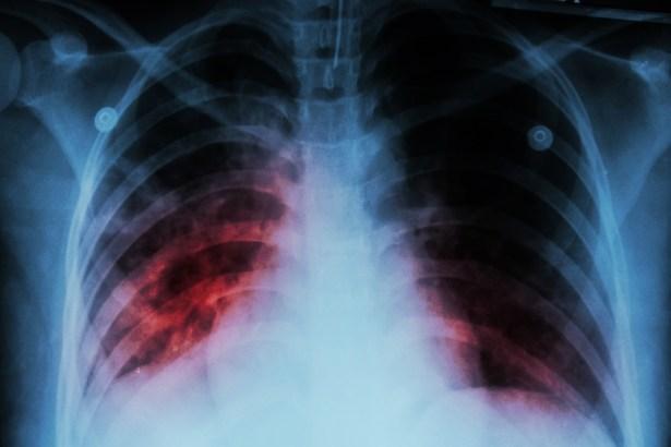 Φυματίωση - Εκατομμύρια νέα κρούσματα λόγω κορωνοϊού