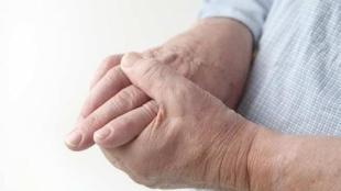 Tips agar Dapat Terhindar dari Penyakit Asam Urat - rematik asam urat alodokter