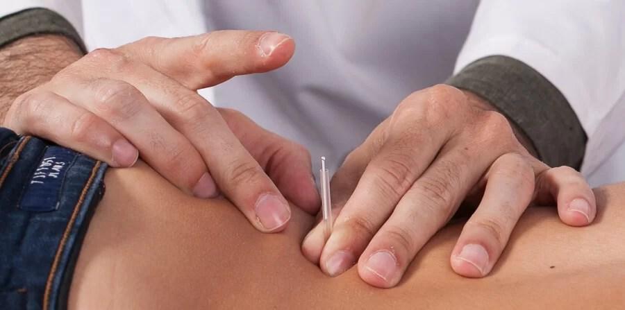 tratamentos de acupuntura patologia dos meridianos