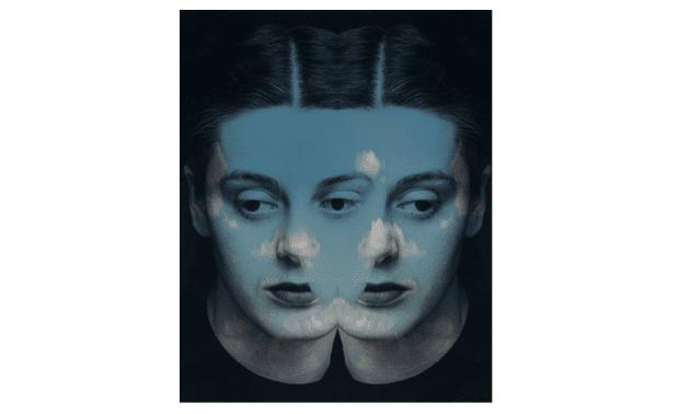Sindrome-dell'impostore 1