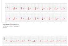 Photo of Apple Watch 4 EKG Technology