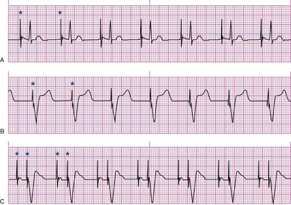 managed ventricular pacing mvp feature medtronic academy - 650×459