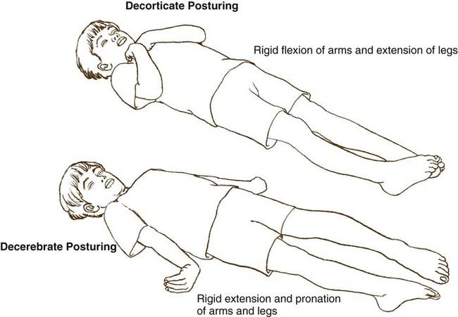 Pediatric Supraventricular Tachycardia