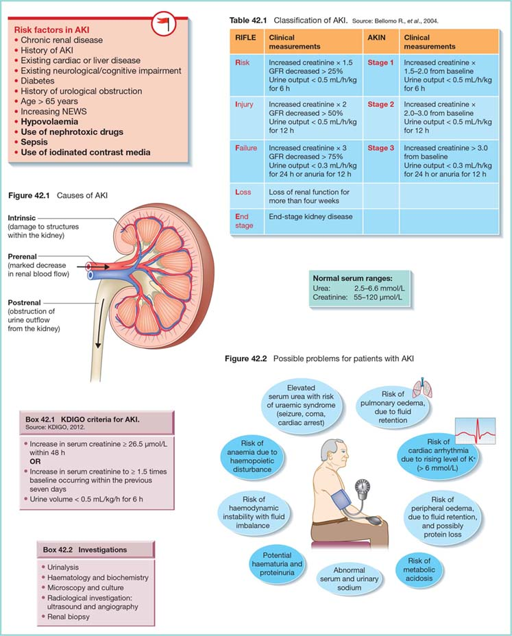Diagram shows Risk factors in AKI as Chronic renal disease, History of AKI, Diabetes, et cetera with classification of AKI. It also shows Intrinsic, Prerenal, and Postrenal as causes of AKI, possible problems for patients with AKI as risk of metabolic acidosis, abnormal serum and urinary sodium, et cetera.