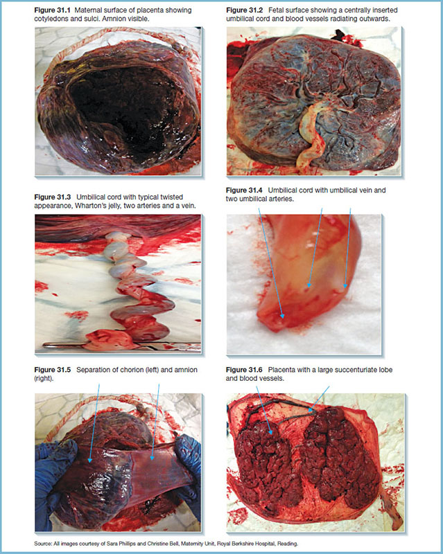 Photographs show placenta's maternal surface, fetal surface, umbilical cord, umbilical cord with umbilical vein and two umbilical arteries, chorion and amnion separation and placenta.