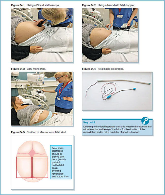 Photographs show nurse using Pinard stethoscope, hand-held fetal doppler and CTG monitoring, photograph shows fetal scalp electrodes, and diagram shows electrode position on fetal skull.