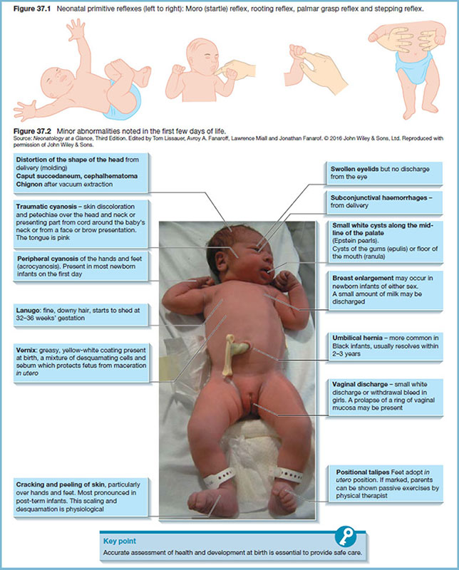 Diagram shows neonatal primitive reflexes in children, and photograph shows abnormalities noted in first few days of life with markings for traumatic cyanosis, swollen eyelids, breast enlargement, et cetera.