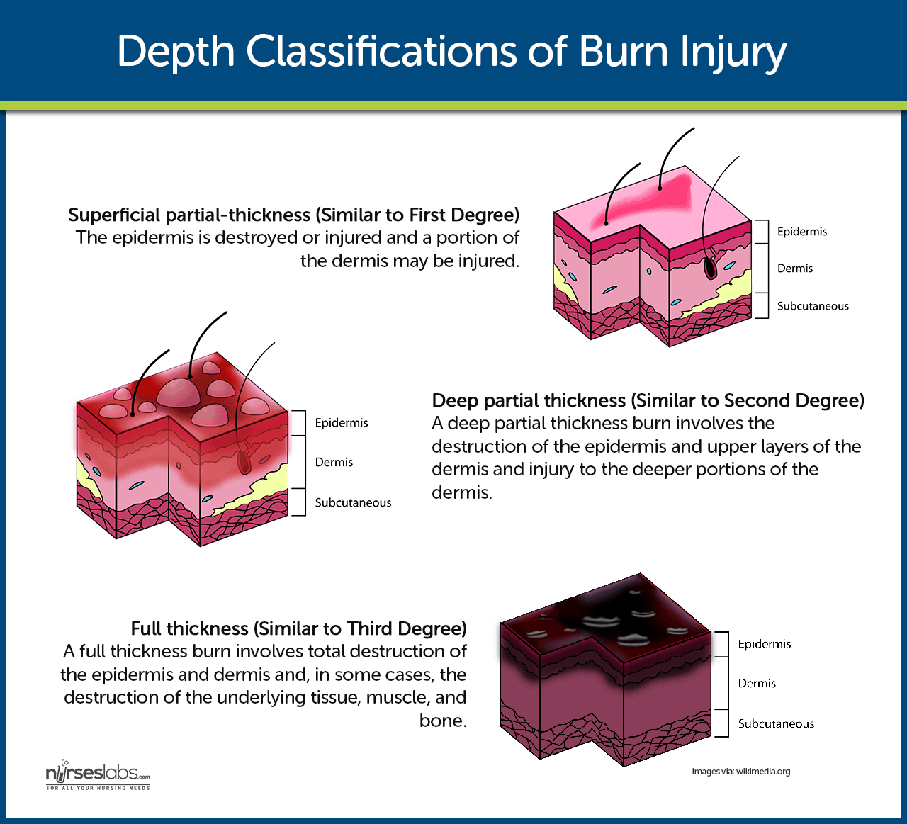 Burn Injury Nursing Care Management And Study Guide