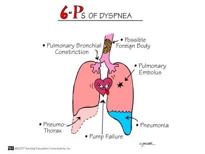 Six Ps of Dyspnea