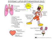 Lupous