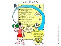 Right CVA