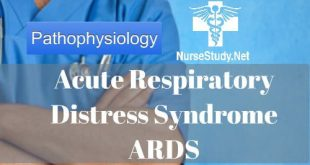 Acute Respiratory distress syndrome ARDS