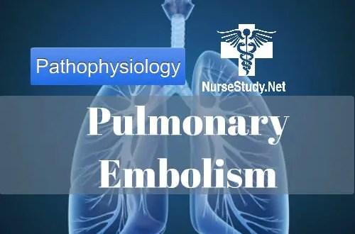 Pulmonary embolism for nursing students