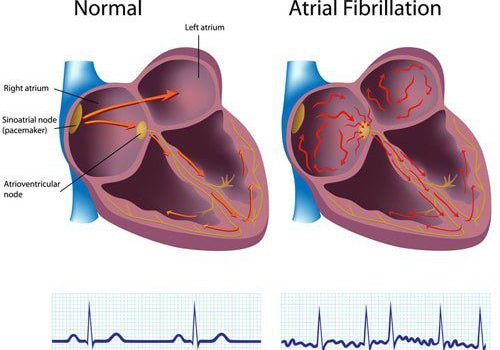 Atrial Fibrillation drawing