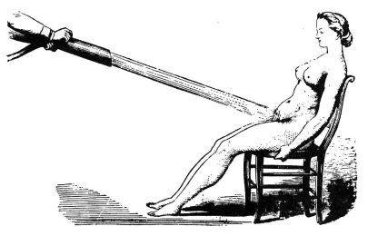 """Pelvic douche"" was used as a treatment for hysteria in the 19th century."