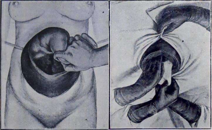 Left: Exteriroisado e aberto o utero, extrae-se o feto. (Figure 13, Vanzolini, José Juliano. Da embryotomia. Rio de Janeiro: Typ. Barberó & Companhia, 1914) Right: Extracção da placenta e das membranas. (Figure 14, Vanzolini, 1914)