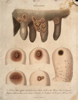 An old illustration showing a portion of a cow udder covered in open sores. Below the udder illustration is one of several human arms affected with similar sores.
