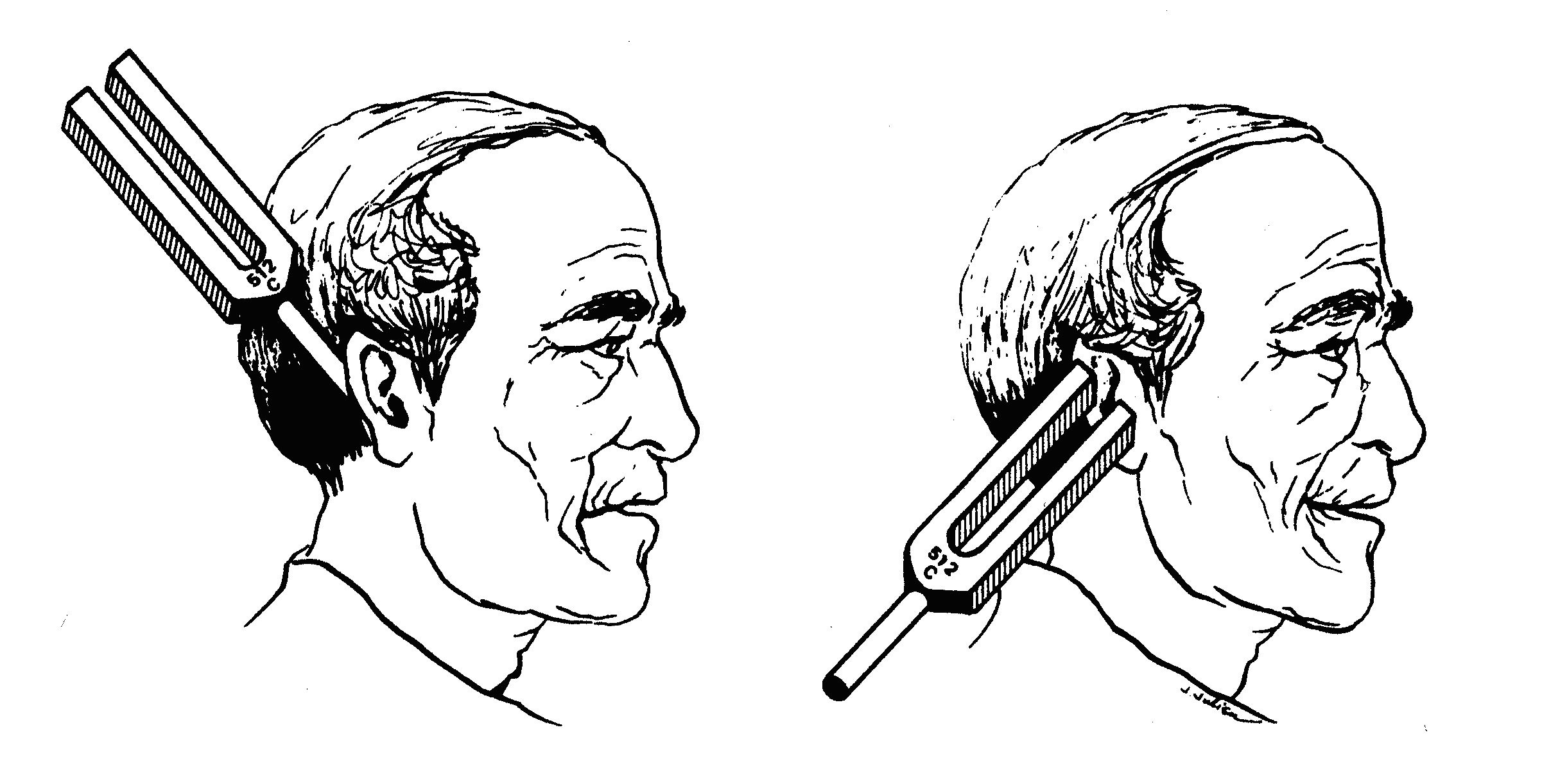 Daily Nursing Trivia Difference Between Caput Succedaneum And Cephalhematoma Plus 2 More