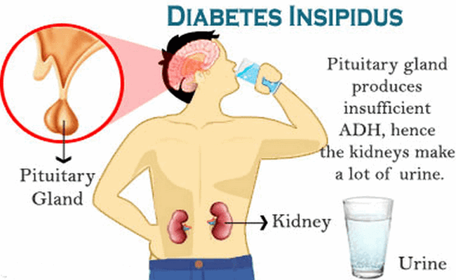Diabetes Insipidus Disease With Causes And Nursing Intervention