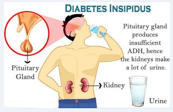 diabetes insípida nephrogenique ppta