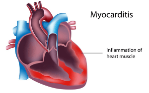 Myocarditis Disease with Causes, Treatment and Nursing Intervention