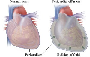 Pericarditis Disease with Causes, Treatment and Nursing Intervention