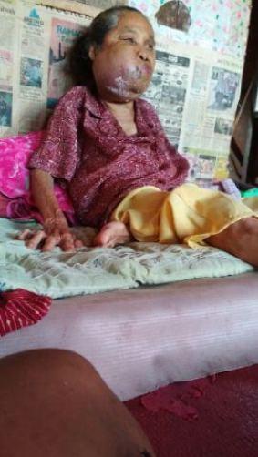 Ibu Rumlah Mengidap kanker bawah rahang/Foto Dok. Pribadi/Nusantaranews