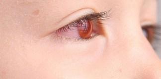 Mata Merah. (Foto: Ilustrasi)