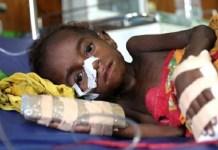 Anak-anak di Kabupaten Asmat tengah menderita KLB Campak dan Gizi Buruk. Foto: Puspen TNI