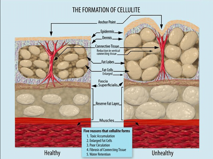 alimentation anti cellulite