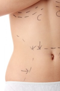Body contouring in Draper, UT