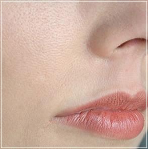 Tighening Facial skin Pores