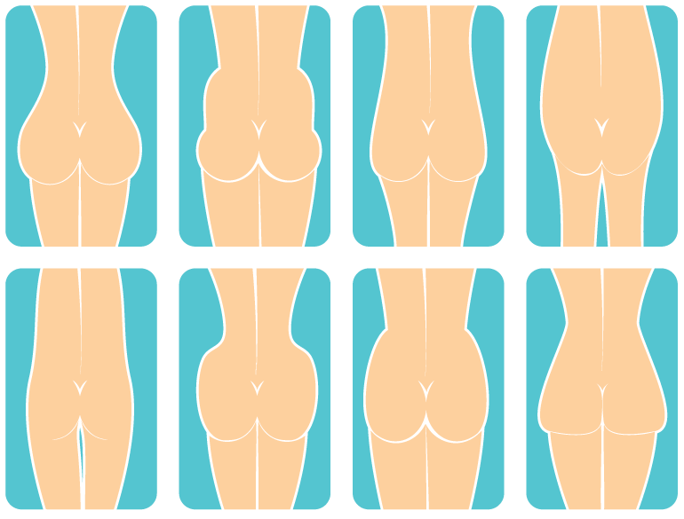 Find your butt shape and learn how surgery can help.