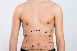 Liposuction for men in Draper, UT