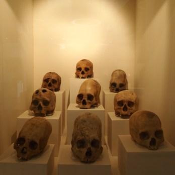 türlü şekillerde deforme edilen kafatasları